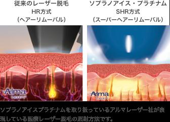 従来のレーザー脱毛(HR方式 ヘアーリムーバル)とソプラノアイス・プラチナム(SHR方式 スーパーヘアーリムーバル) ソプラノアイスプラチナムを取り扱っているアルマレーザー社が表現している医療レーザー脱毛の照射方法です。